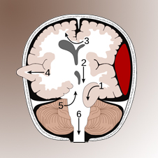 agytályog  kisagytályog